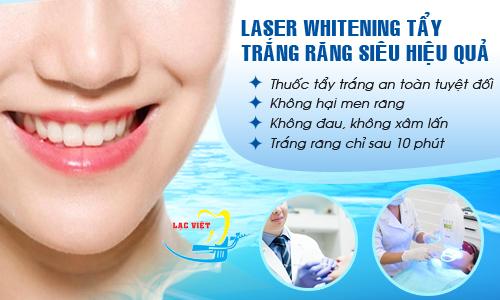 cách tẩy trắng răng tại nhà với laser whitening