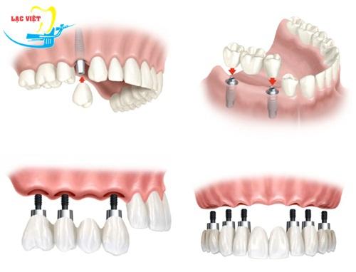 trồng răng giả bao nhiêu tiền với cấy ghép implant phụ thuộc vào đâu?