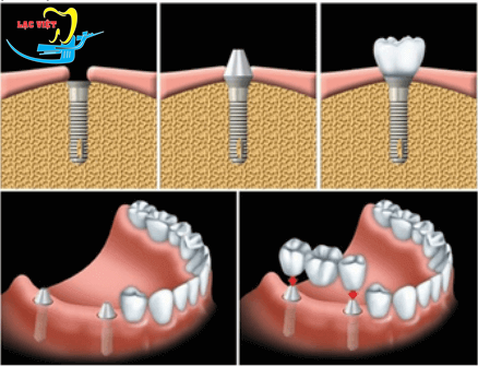 trồng răng giả mất bao lâu với cấy ghép implant?