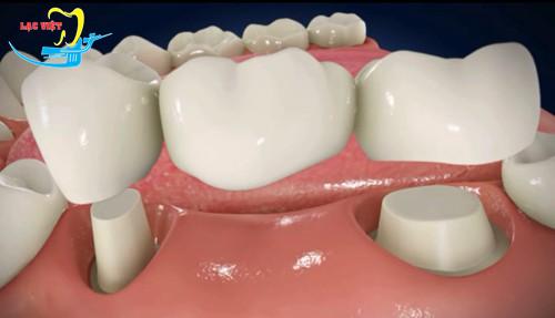 Trồng răng giả mất bao lâu với phương pháp làm cầu răng?