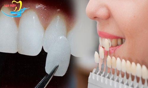 trồng răng khểnh giá bao nhiêu phụ thuộc vào loại răng sứ lựa chọn để trồng răng khểnh
