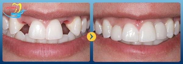 kết quả của một ca phục hình bằng cách trồng răng sứ giúp bạn quyết định trồng răng sứ có tốt không