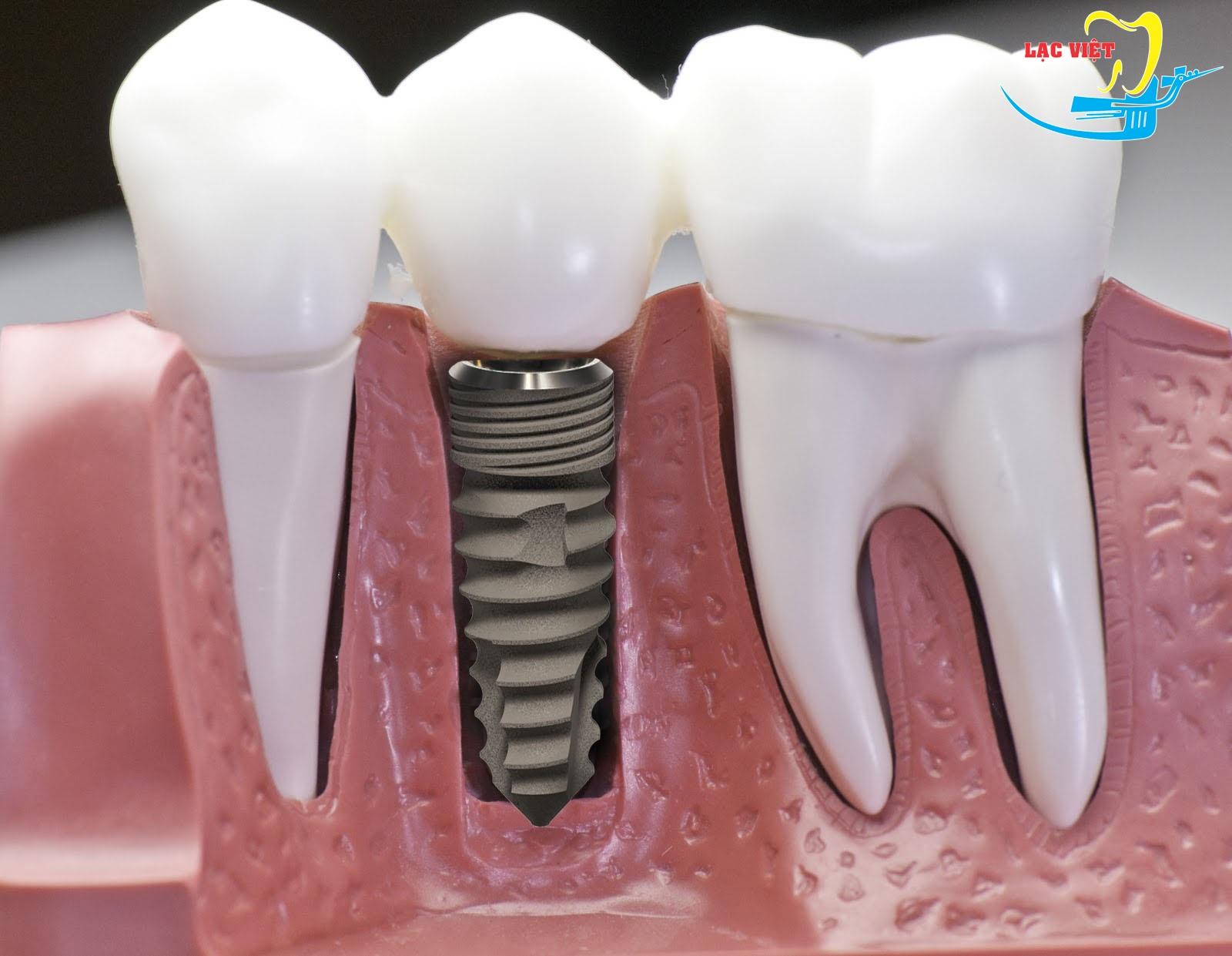 trồng răng sứ thẩm mỹ bằng phương pháp cấy ghép implant