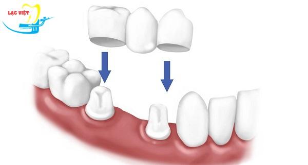 trồng răng sứ thẩm mỹ bằng phương pháp làm cầu răng