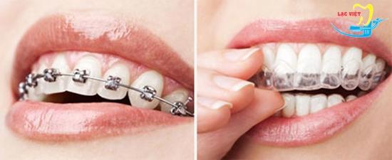 Ưu điểm của niềng răng thẩm mỹ Invisalign là gì?