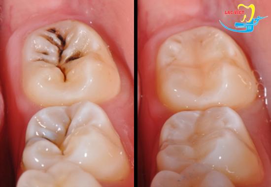 Quy trình trám răng sâu và kết quả