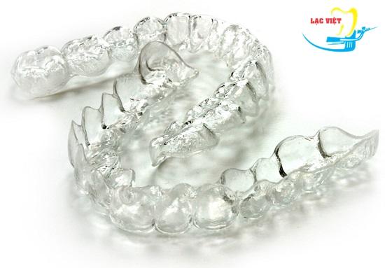 Càng sử dụng nhiều khay thời gian niềng răng không mắc cài càng lâu