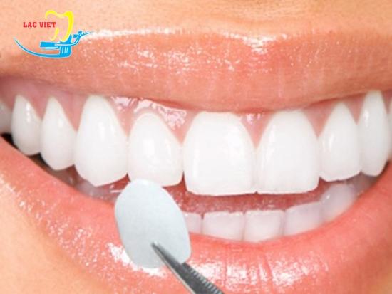 răng khểnh mọc khi nào và phương pháp bọc sứ