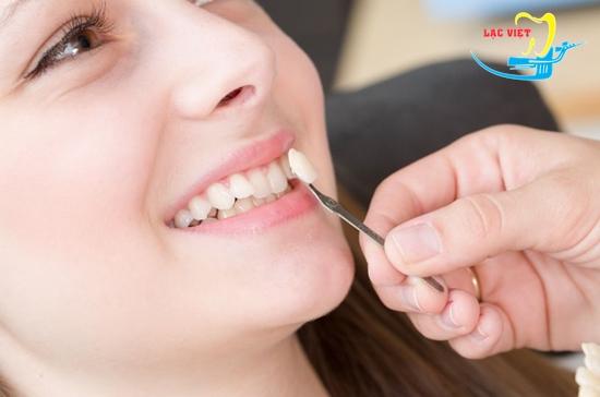 thẩm mỹ răng khấp khểnh bằng bọc sứ