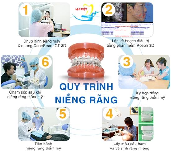 Quy trình niềng 2 răng khểnh
