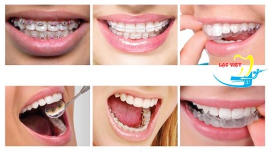 Các phương pháp niềng răng khểnh 2 cái