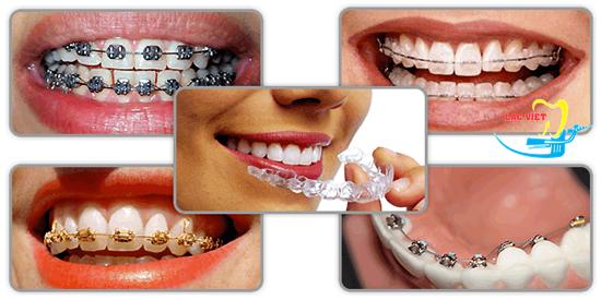 Một số kinh nghiệm niềng răng thưa cực kì HỮU ÍCH