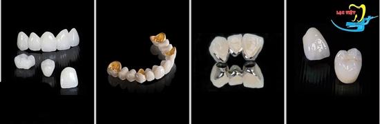 nên đi trồng răng ở đâu có đa dạng các loại răng sứ