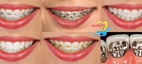 những người có răng khểnh và các phương pháp niềng răng
