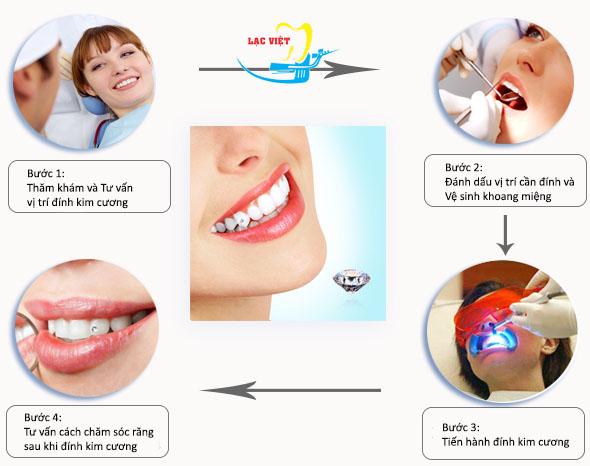 cách đính đá vào răng tại nha khoa Lạc Việt