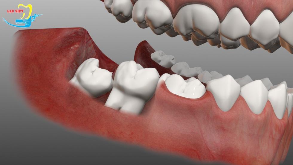 đau răng hàm dưới do răng khôn mọc lệch, mọc ngầm