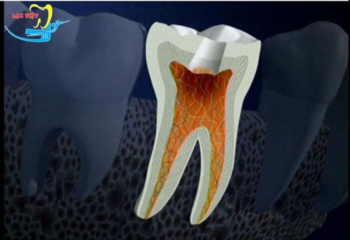 đau răng hàm dưới do viêm tủy