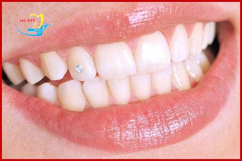phương pháp Đính đá lên răng không cần khoan