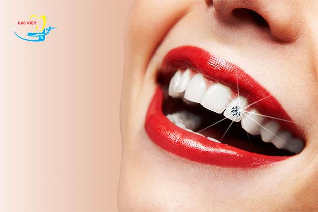 tìm hiểu về đính đá vào răng