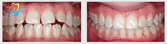 thời gian điều trị niềng răng không mắc cài và kết quả