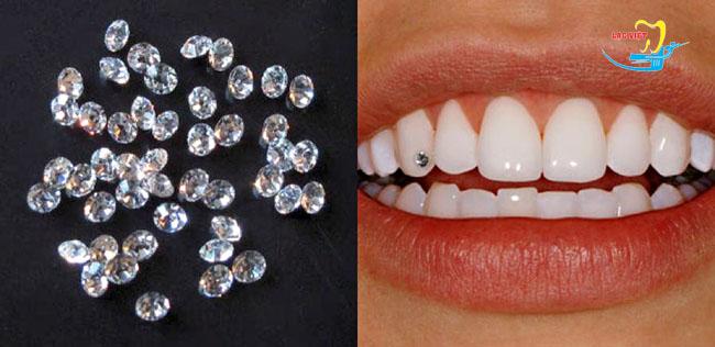 mua kim cương đính răng ở đâu uy tín tại Hà Nội
