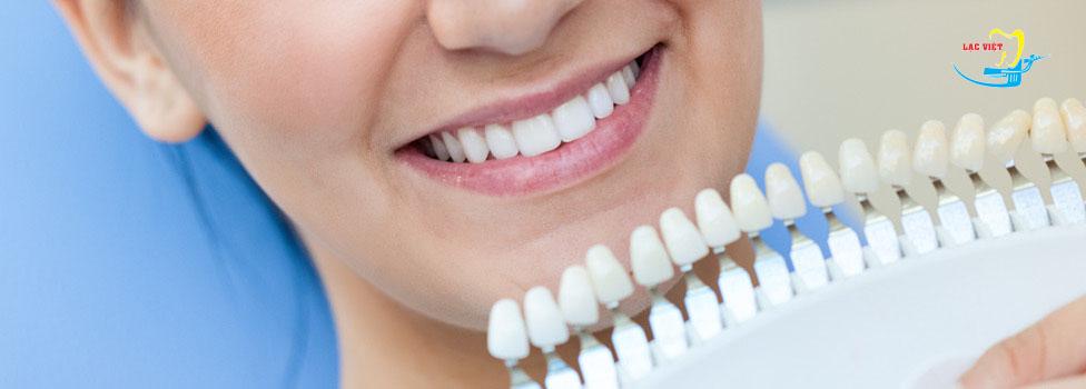 Kem tẩy trắng răng tốt hay không