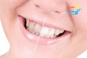 phân tích về Kem tẩy trắng răng