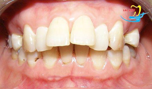 Kẹp răng vẩu là gì