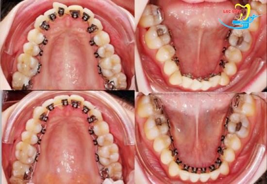 Kết quả niềng răng mắc cài mặt trong
