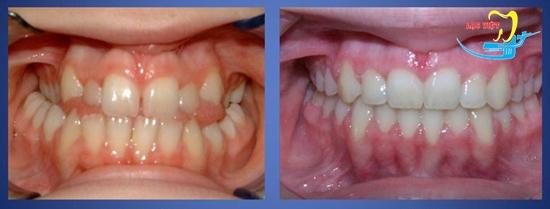 Niềng răng mặt trong mất bao lâu và kết quả