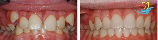 Thời gian niềng răng mất bao lâu sẽ hiệu quả và kết quả như thế nào