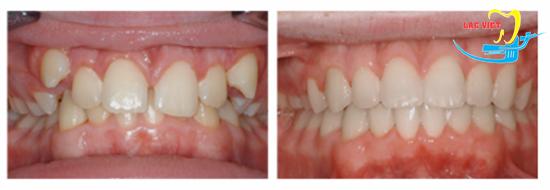 Kết quả niềng răng khểnh 2 bên