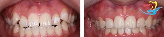răng khểnh và tướng số - kết quả niềng răng khểnh
