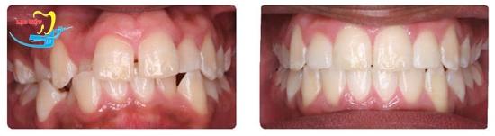 Kết quả sửa răng hô bằng niềng răng