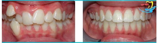 phương pháp niềng răng mắc cài nào thì tối ưu và kết quả