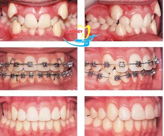 răng khểnh có nên niềng không và kết quả niềng răng khểnh