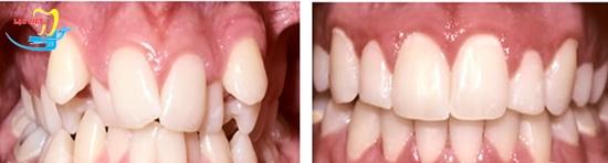 những người có răng khểnh và kết quả niềng răng