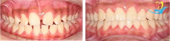 Giá niềng răng thưa bao nhiêu và kết quả
