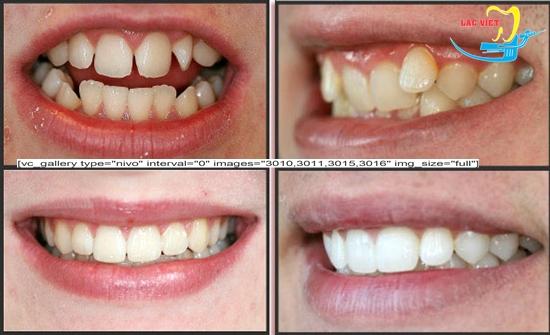 niềng răng thưa hàm trên giá bao nhiêu và kết quả