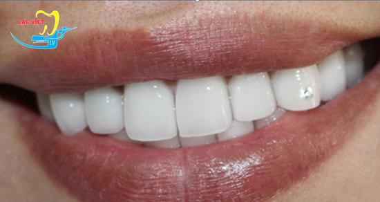 răng khểnh mọc như thế nào và kết quả tạo răng khểnh