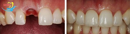 trồng răng sứ ở đâu tốt và kết quả