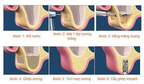 cùng phân tích về các bước cấy ghép răng Implant