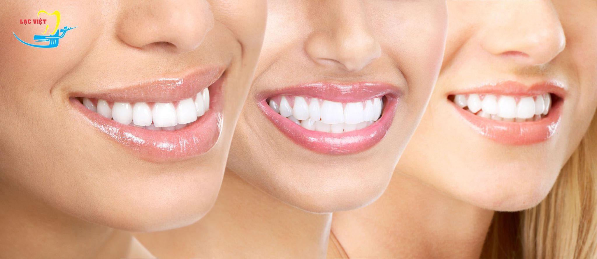 Điểm mạnh của tẩy trắng răng là gì