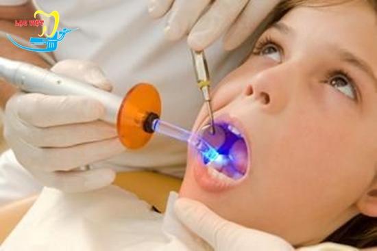 Quy trình trám răng sâu và bước chiếu tia Laser