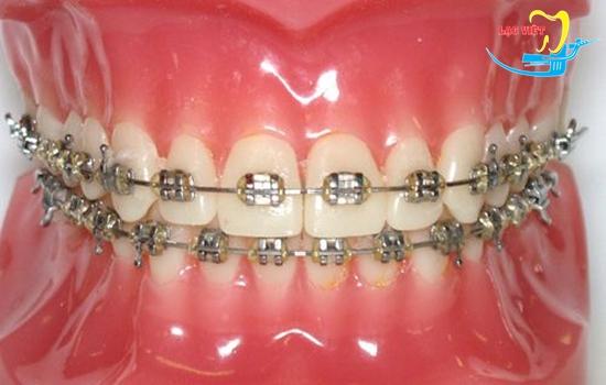trong các cách niềng răng mắc cài thì mắc cài kim loại là phổ biến nhất