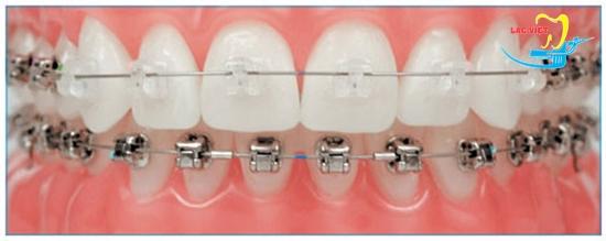 Niềng răng mắc cài sứ là gì và niềng răng mắc cài sứ bao lâu thì đẹp