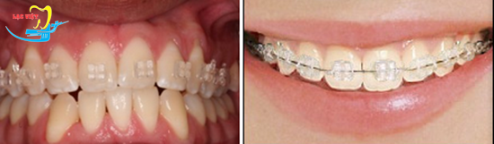 niềng răng mắc cài tự đóng sứ là gì