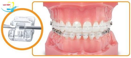 niềng răng mắc cài sứ bao lâu với công nghệ tự buộc