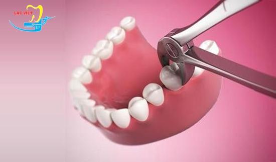 sâu răng hàm trên có nên nhổ và khi nào nên nhổ