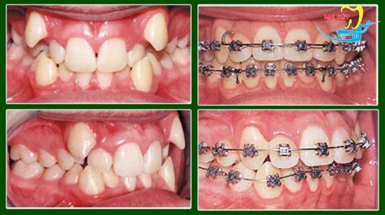 Phương pháp niềng 2 răng khểnh